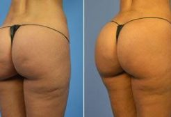 How can radio frequency help weight loss cellulite on body?