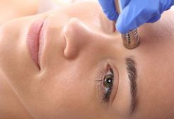 Minimize Sun Spots and Sun Damage with Microdermabrasion